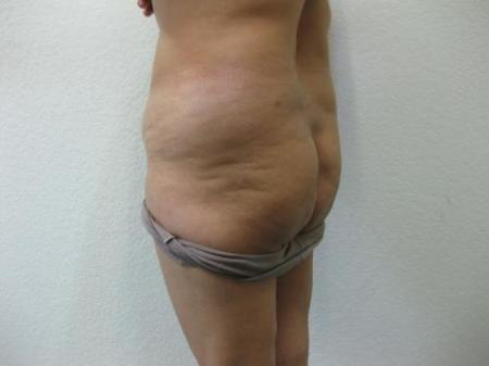 Brazilian Butt Lift - Patient 4 - Before Image 3