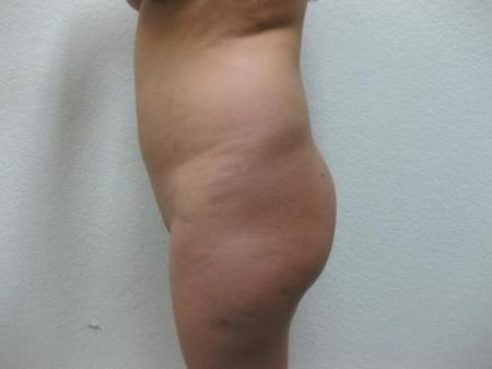 Brazilian Butt Lift - Patient 3 -  After Image 3