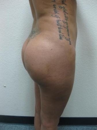 Brazilian Butt Lift - Patient 3 -  After Image 5