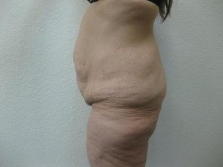 Body Lift - Patient 8 - Before Image 7