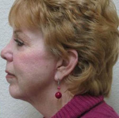 Neck Lift - Patient 1 -  After Image 2