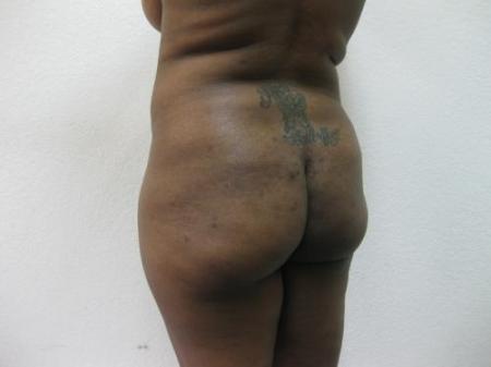 Brazilian Butt Lift - Patient 2 - Before Image 4