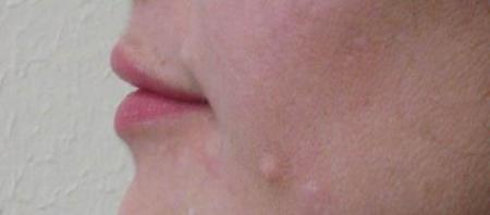 Lip Augmentation - Patient 1 -  After Image 1