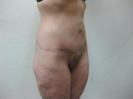 Body Lift - Patient 8 -  After Image 1