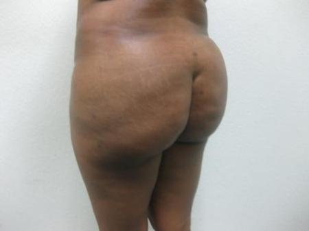 Brazilian Butt Lift - Patient 5 -  After Image 3