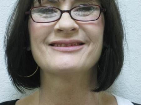 Lip Augmentation - Patient 2 -  After Image 6