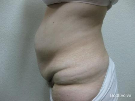 Patient 4 - Cosmetic Surgery After Massive Weight Loss - Before Image 3