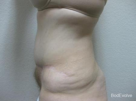 Patient 4 - Cosmetic Surgery After Massive Weight Loss -  After Image 3