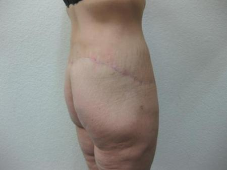 Body Lift - Patient 8 -  After Image 4