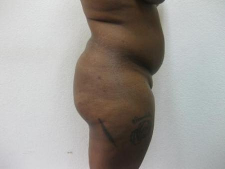 Brazilian Butt Lift - Patient 2 - Before Image 2