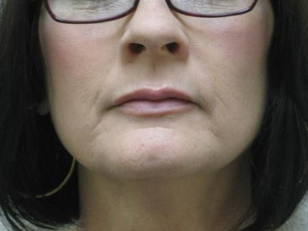 Lip Augmentation - Patient 2 -  After Image 7