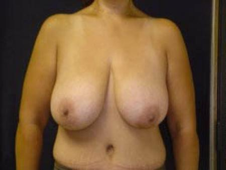 Breast Augmentation with Lift - Patient 9 - Before Image 1