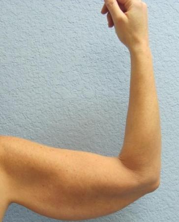 Arm Lift Surgery - Patient 3 - Before Image 7