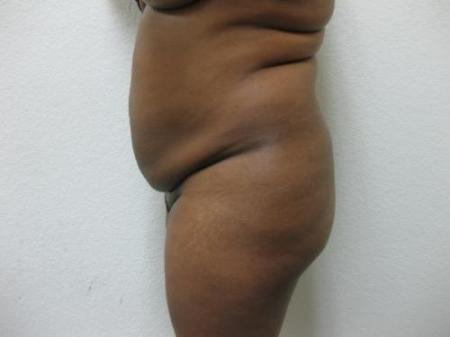 Brazilian Butt Lift - Patient 5 - Before Image 2