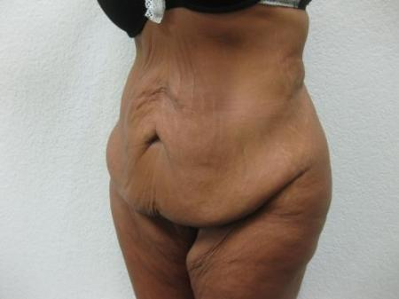 Tummy Tuck - Patient 3 - Before Image 2