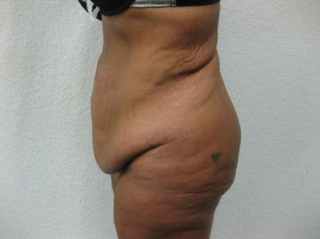 Tummy Tuck - Patient 3 - Before Image 3