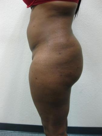 Brazilian Butt Lift - Patient 2 -  After Image 1