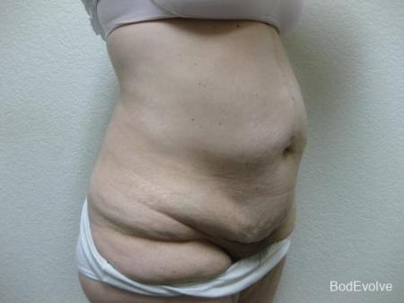 Patient 4 - Cosmetic Surgery After Massive Weight Loss - Before Image 4