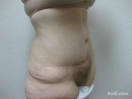 Patient 4 - Cosmetic Surgery After Massive Weight Loss -  After Image 4