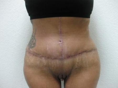 Tummy Tuck - Patient 3 -  After Image 1