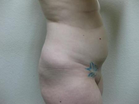 Liposuction - Patient 5 - Before Image 2