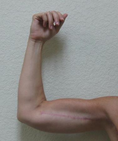 Arm Lift Surgery - Patient 3 -  After Image 5
