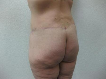 Body Lift - Patient 8 -  After Image 5