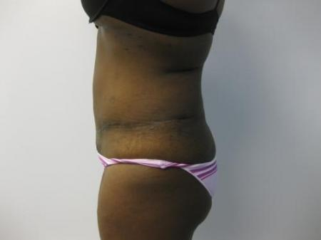 Tummy Tuck - Patient 5 -  After Image 3