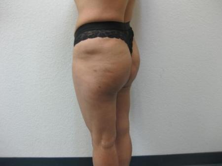 Brazilian Butt Lift - Patient 4 -  After Image 3