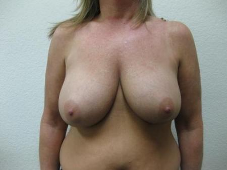 Breast Reduction - Patient 3 - Before Image 1