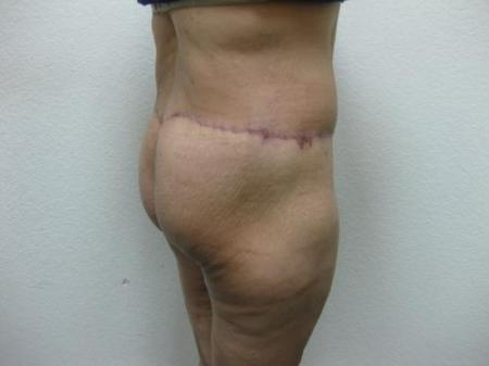 Body Lift - Patient 7 -  After Image 2