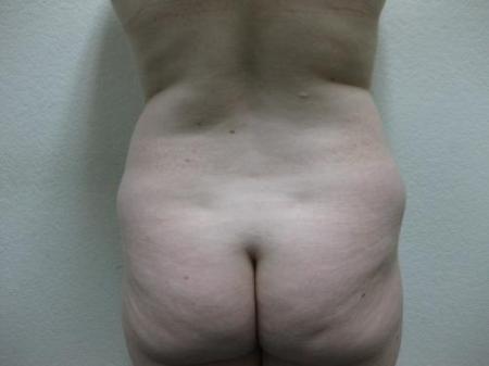 Liposuction - Patient 5 - Before Image 6
