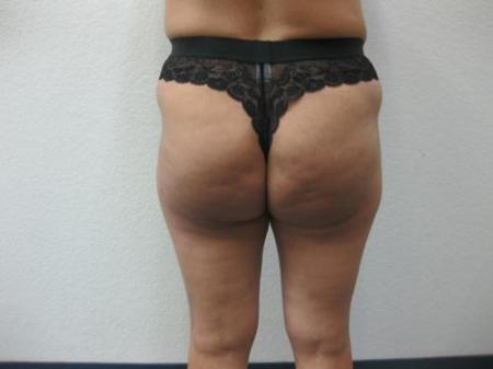 Brazilian Butt Lift - Patient 4 -  After Image 1