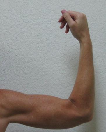 Arm Lift Surgery - Patient 3 -  After Image 7