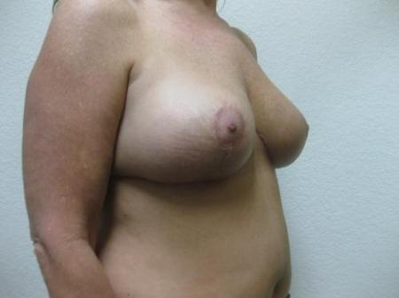 Breast Reduction - Patient 3 -  After Image 2