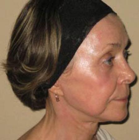 Facelift - Patient 2 -  After Image 5