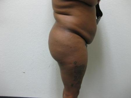 Brazilian Butt Lift - Patient 5 - Before Image 5