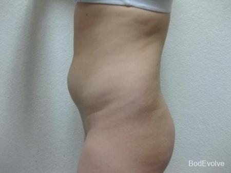Liposuction - Patient 2 - Before Image 3