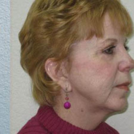 Neck Lift - Patient 1 -  After Image 3