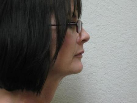 Lip Augmentation - Patient 2 -  After Image 3