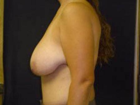 Breast Augmentation with Lift - Patient 9 - Before Image 3