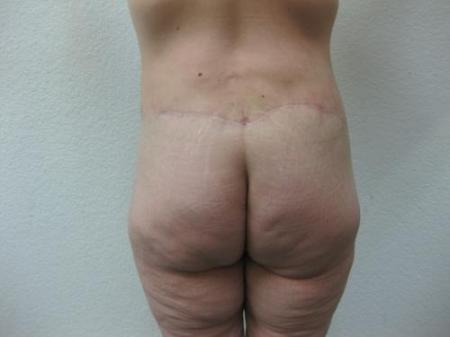 Body Lift - Patient 8 -  After Image 3