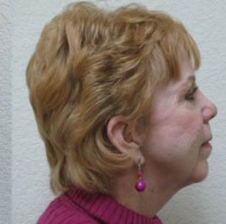 Neck Lift - Patient 1 -  After Image 4