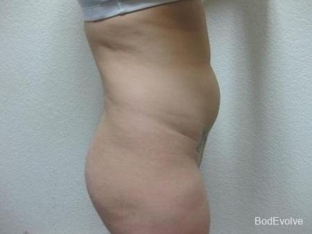 Liposuction - Patient 2 - Before Image 5