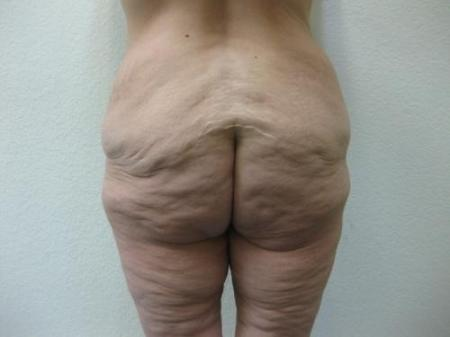 Body Lift - Patient 8 - Before Image 3