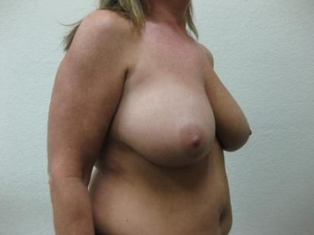Breast Reduction - Patient 3 - Before Image 2