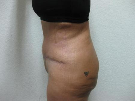 Tummy Tuck - Patient 3 -  After Image 3