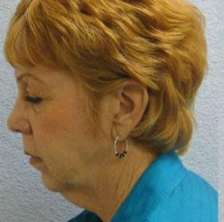 Facelift - Patient 1 - Before Image 1