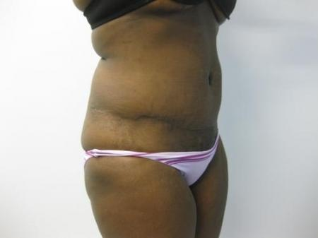 Tummy Tuck - Patient 5 -  After Image 4