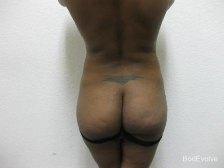 Brazilian Butt Lift - Patient 1 - Before Image 1